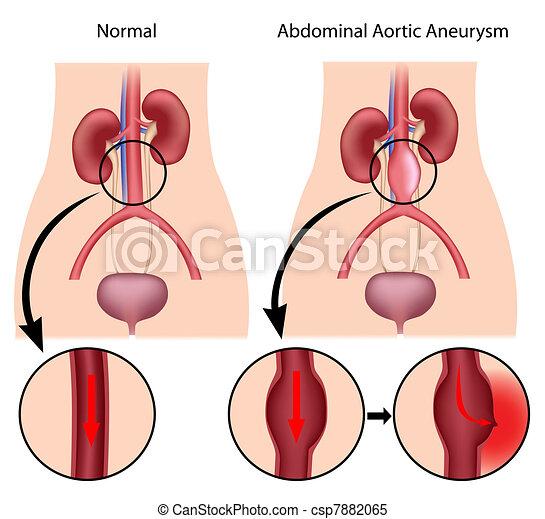 abdominal, aortal, eps8, aneurysma - csp7882065