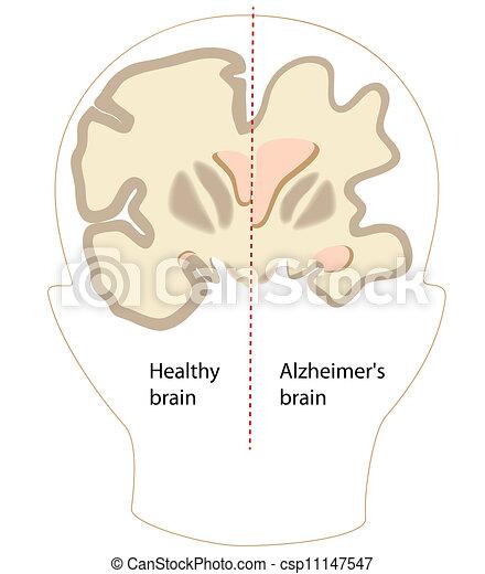 alzheimer, gehirn, krankheit, eps8 - csp11147547