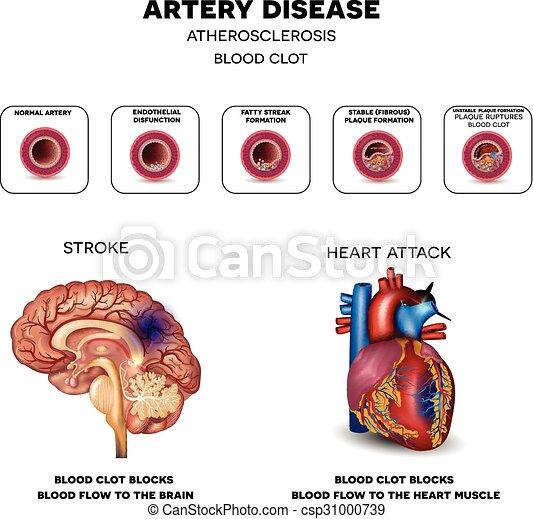 Arterienkrankheit - csp31000739
