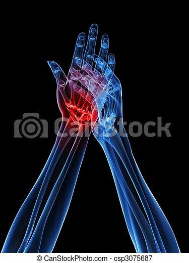Röntgen-Hände - Arthritis - csp3075687