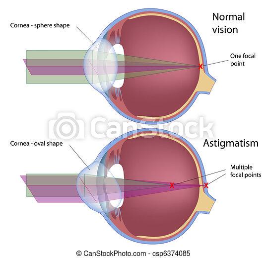 astigmatismus, eps10 - csp6374085