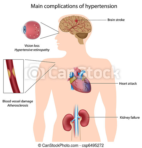Komplikationen von Hypertension, Eps8 - csp6495272