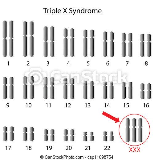 Dreifaches X-Syndrom, Eps8. - csp11098754
