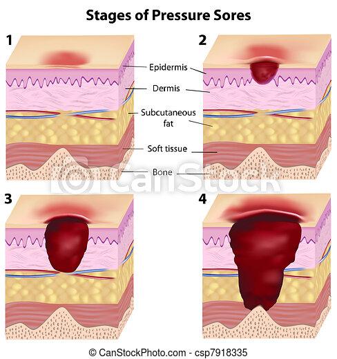 Stages ofdruck schmerzt, eps8 - csp7918335