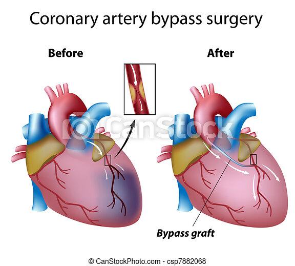 Herz Bypass Operation, Eps8 - csp7882068