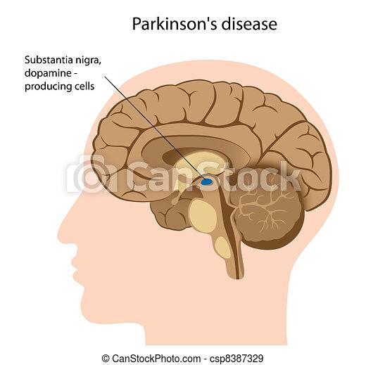 krankheit, parkinson's, eps8 - csp8387329