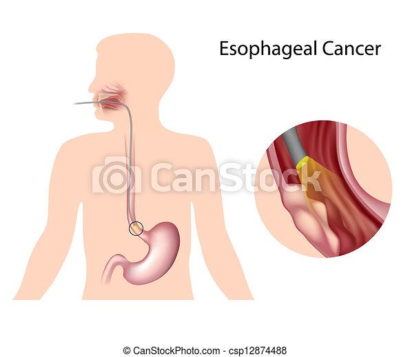 Esophagealer Krebs , Eps 10 - csp12874488