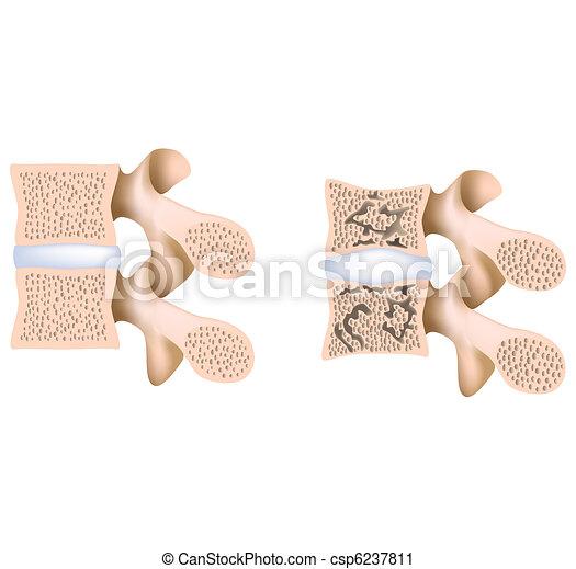 Lumbale Wirbelsäule Osteoporose - csp6237811