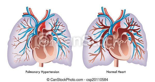 Pulmonale Hypertonie - csp20110584