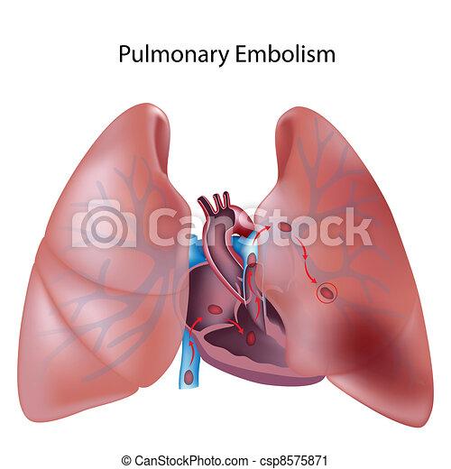 lungen, eps10, embolie - csp8575871