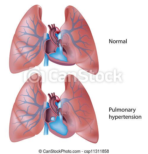 Lungenhochdruck, Eps10 - csp11311858