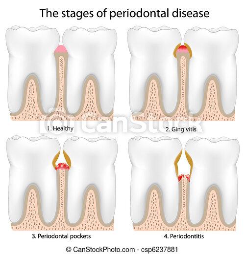 periodontal krankheit - csp6237881