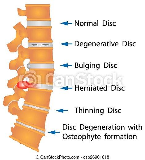 Rückenverhältnisse - csp26901618