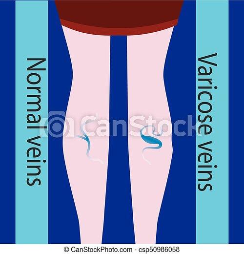 schöne , vein., varicose, normal, schlanke, weibliche , vektor, legs., vene - csp50986058