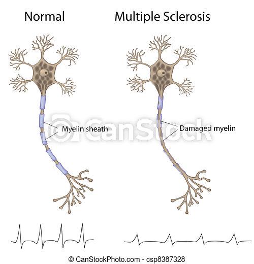 Multiple Sklerose, Eps8 - csp8387328