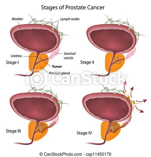 Stadium von Prostatakrebs, Eps10 - csp11450179