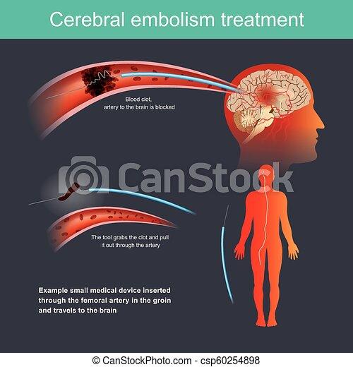 treatment., zerebral, embolie - csp60254898