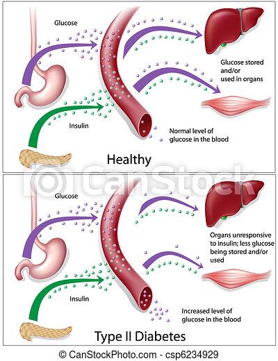 Typ 2 Diabetes - csp6234929